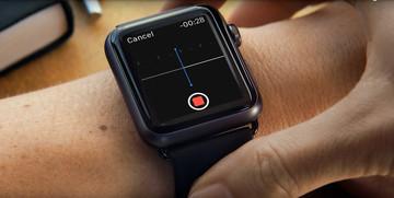 AliveCor's new Kardia Band for the Apple Watch promises medical-grade EKG data