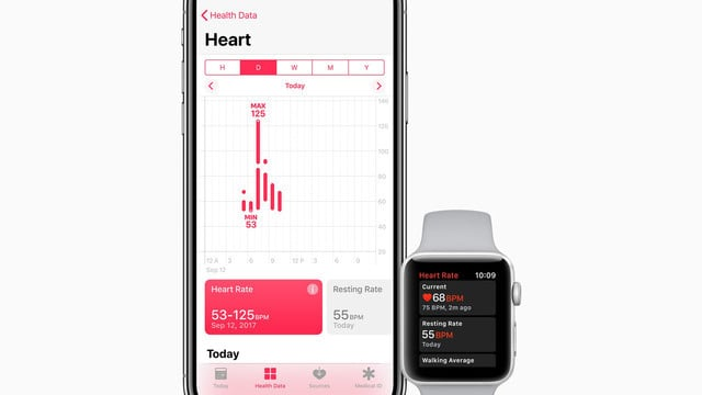 Future Apple Watch Models May Feature a Built-In EKG Heart Monitor